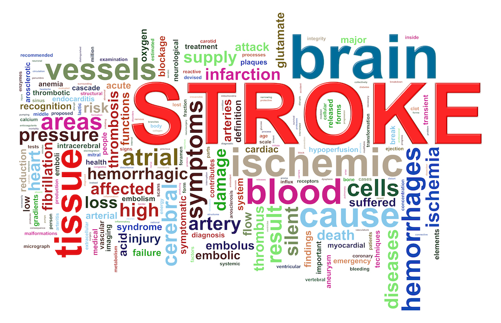 Brain stroke assessment sydney