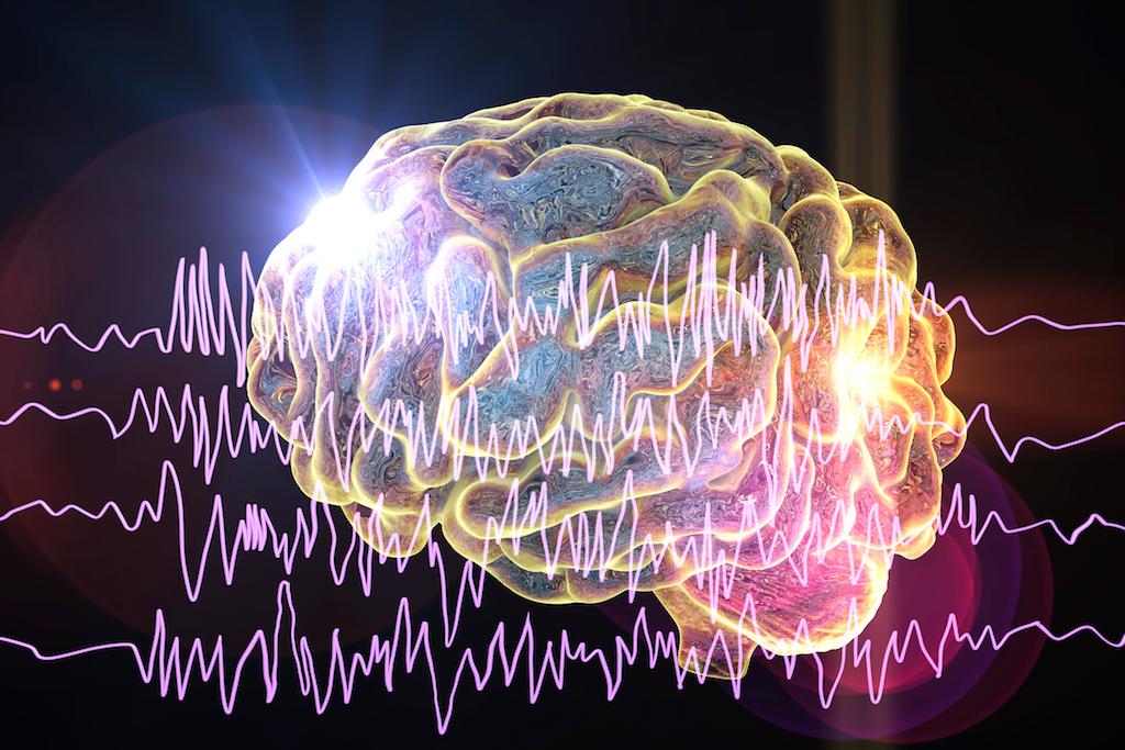 Epilepsy treatment Sydney