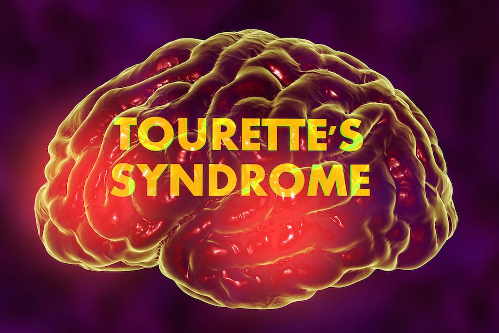 Tourette's syndrome treatment Sydney