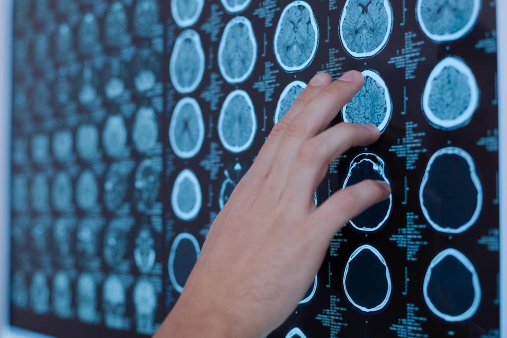brain tunour neuropsycholoical assessment